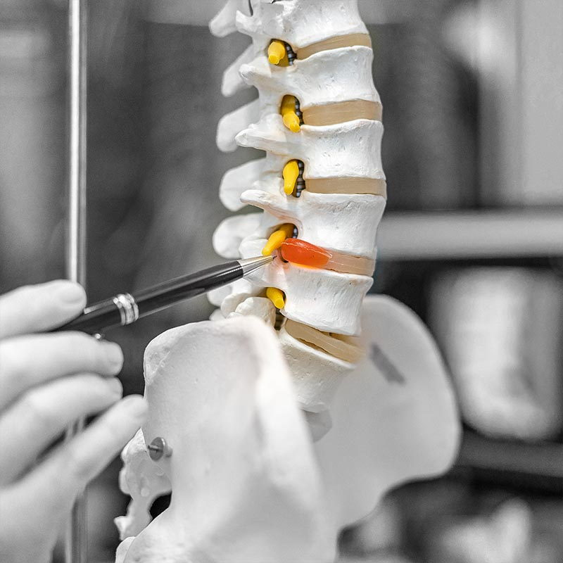 Chiropractie voor mensen met rugklachten waaronder hernia